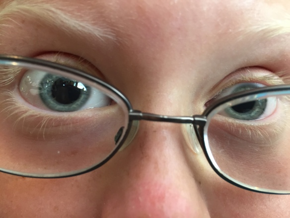 Dilated crazy eyes!